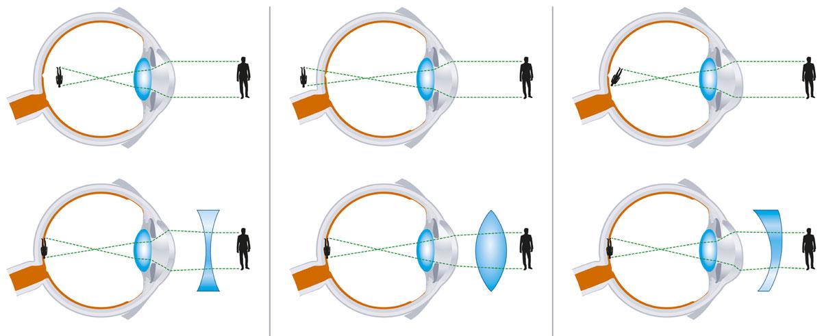 was ist hyperopie astigmatismus